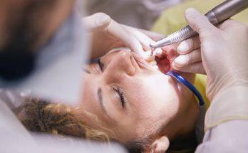 what is dental veneers Pros and Cons of Dental Veneers