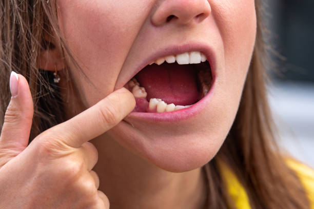 Cavity Prevention Why You Need to See a Dentist near me